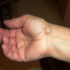 Cyst in ulnar styloid of thumb
