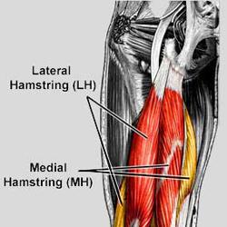 Muscle Sprain 53