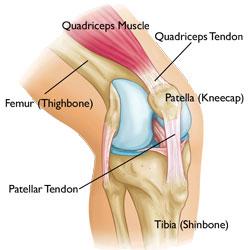Patellar Tendonitis and Ruptured Tendons