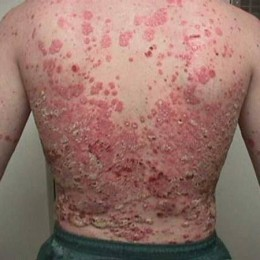 Ringworm of the Skin-Home Treatment - WebMD