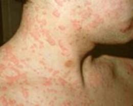 Skin Rash: 59 Pictures, Causes, Treatments - Healthline