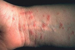 Understanding the Causes, Treatment, and Prevention of Scabies -